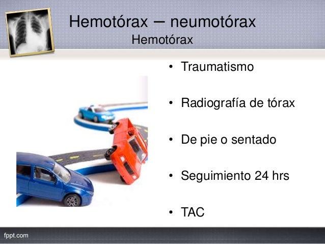 Hemotórax – neumotórax Hemotórax • Traumatismo • Radiografía de tórax • De pie o sentado • Seguimiento 24 hrs • TAC
