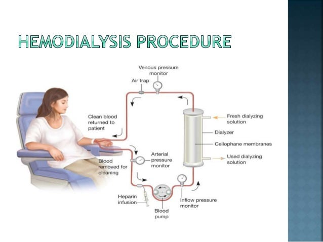 hemodialysis-procedure-6-638. ...