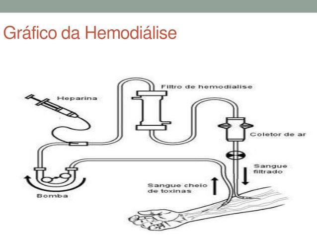 Hemodilise e dilise peritoneal 8 ccuart Choice Image