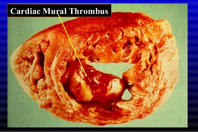 Hemodynamic disorders med 2011 final ii for Aortic mural thrombus