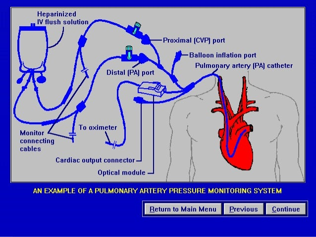 Hemodynamic Monitoring Ppt