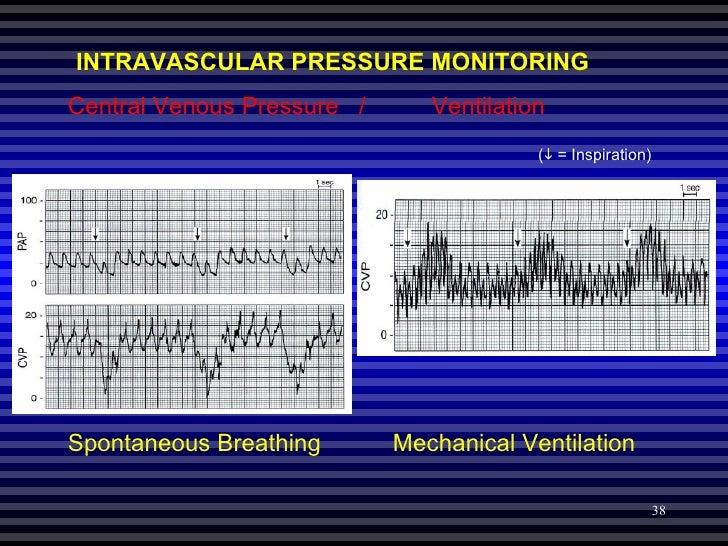 Hemodynamic Pressure Monitoring