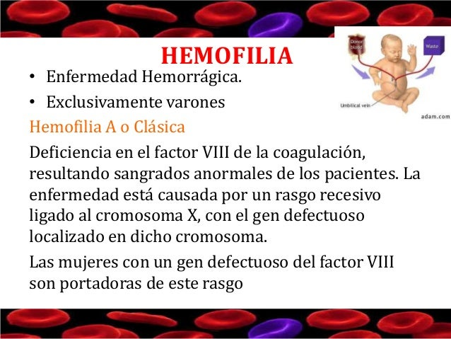 HEMOFILIA  • Enfermedad Hemorrágica. • Exclusivamente varones Hemofilia A o Clásica Deficiencia en el factor VIII de la co...