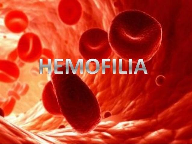 INDICE  • ¿Qué es la Hemofilia?. • Causas. • Sintomas. • Tipos. • Tratamiento. • Pronostico.