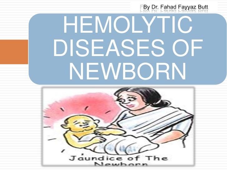 Rh hemolytic disease