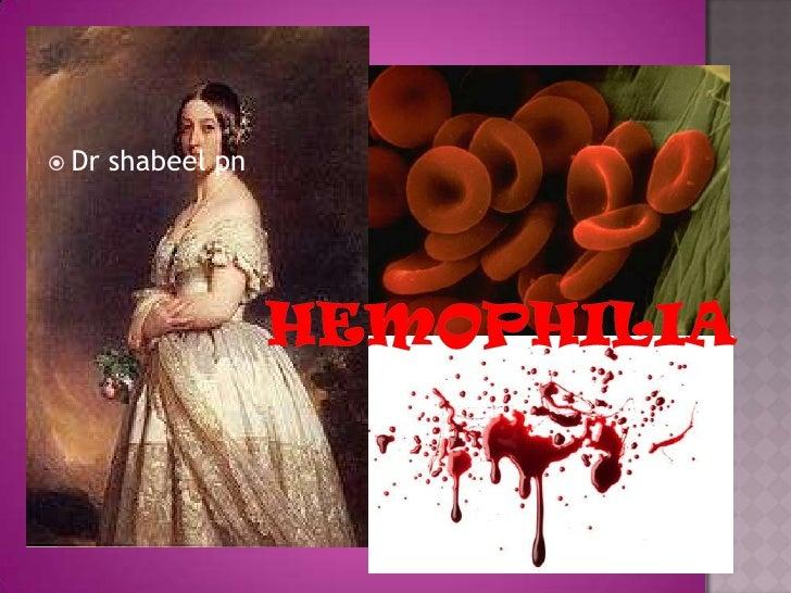 hemophilia<br />Dr shabeelpn<br />