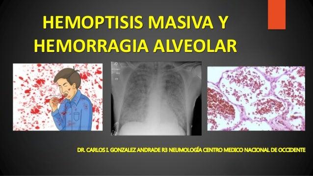 HEMOPTISIS MASIVA Y HEMORRAGIA ALVEOLAR DR. CARLOS I. GONZALEZ ANDRADE R3 NEUMOLOGÍA CENTRO MEDICO NACIONAL DE OCCIDENTE