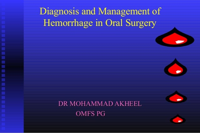 Diagnosis and Management of Hemorrhage in Oral Surgery    DR MOHAMMAD AKHEEL        OMFS PG