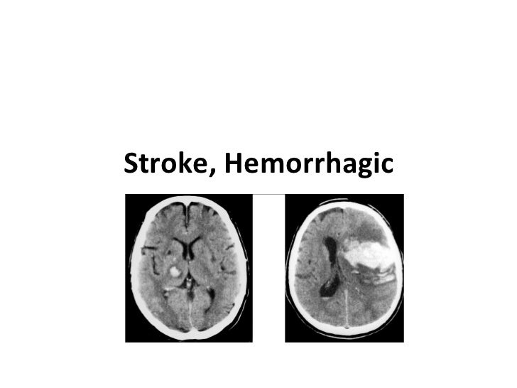 Stroke, Hemorrhagic