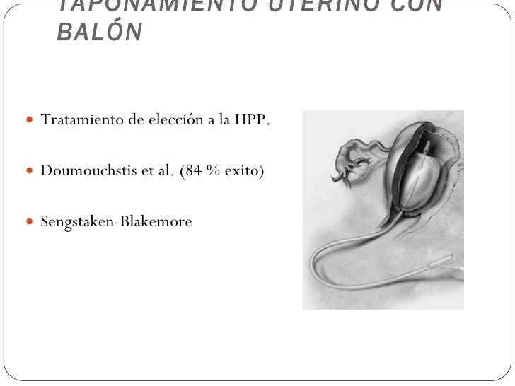 TAPONAMIENTO UTERINO CON BALÓN <ul><li>Tratamiento de elección a la HPP. </li></ul><ul><li>Doumouchstis et al. (84 % exito...