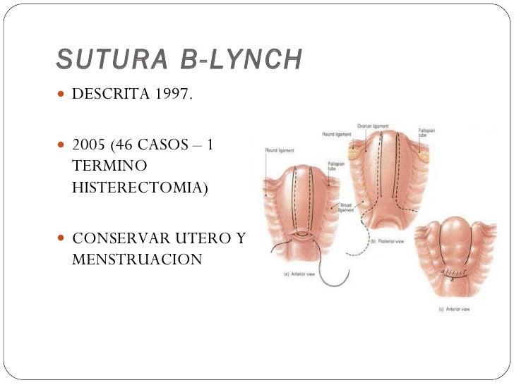 SUTURA B-LYNCH <ul><li>DESCRITA 1997. </li></ul><ul><li>2005 (46 CASOS – 1 TERMINO HISTERECTOMIA) </li></ul><ul><li>CONSER...
