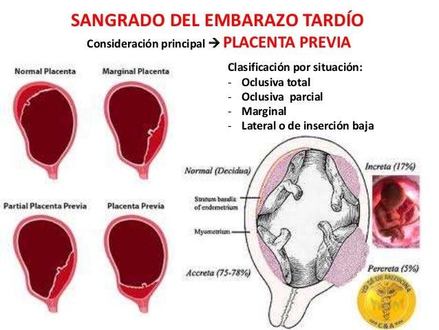 SANGRADO DEL EMBARAZO TARDÍO Consideración principal  PLACENTA PREVIA Clasificación por situación: - Oclusiva total - Ocl...