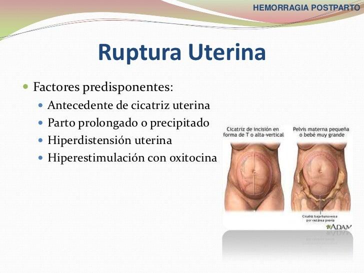 HEMORRAGIA POSTPARTO             Ruptura Uterina Factores predisponentes:    Antecedente de cicatriz uterina    Parto p...