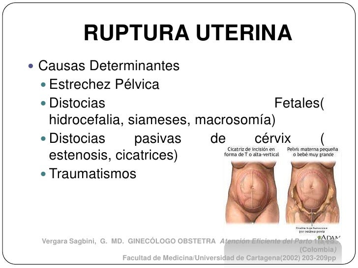 RUPTURA UTERINA Causas Determinantes  Estrechez Pélvica  Distocias                          Fetales(   hidrocefalia, si...