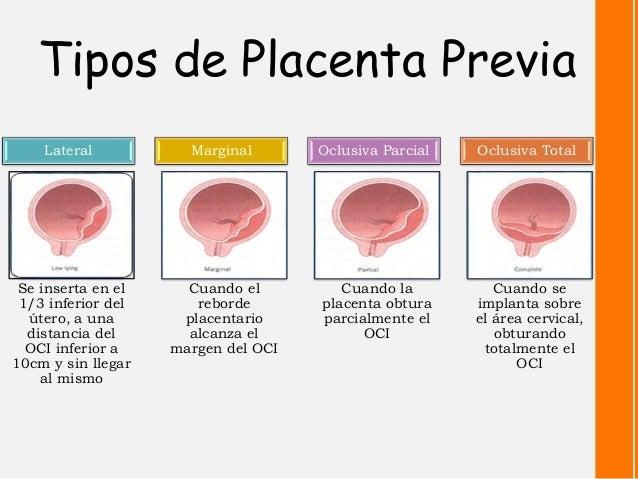Hemorragia en el embarazo