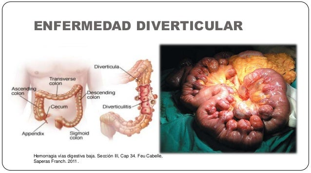 ENFERMEDAD DIVERTICULAR Hemorragia vías digestiva baja. Sección III, Cap 34. Feu Cabelle, Saperas Franch. 2011.