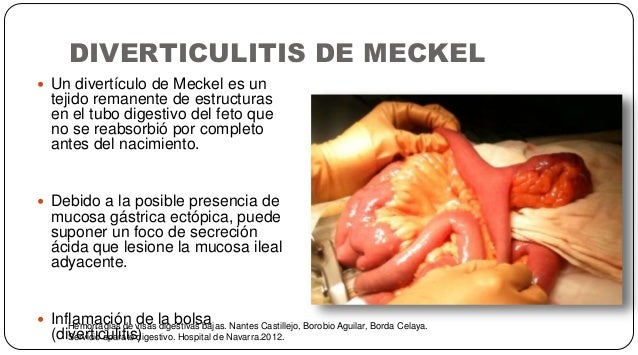 DIVERTICULITIS DE MECKEL Hemorragias de visas digestivas bajas. Nantes Castillejo, Borobio Aguilar, Borda Celaya. Servicio...
