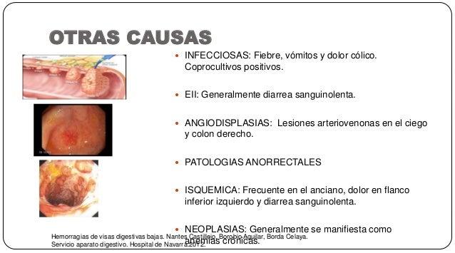 OTRAS CAUSAS Hemorragias de visas digestivas bajas. Nantes Castillejo, Borobio Aguilar, Borda Celaya. Servicio aparato dig...