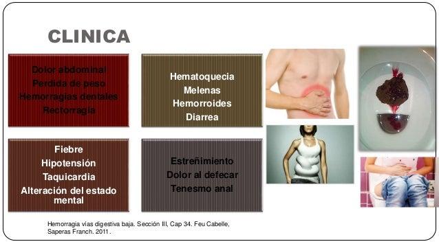 CLINICA Hemorragia vías digestiva baja. Sección III, Cap 34. Feu Cabelle, Saperas Franch. 2011. Dolor abdominal Perdida de...