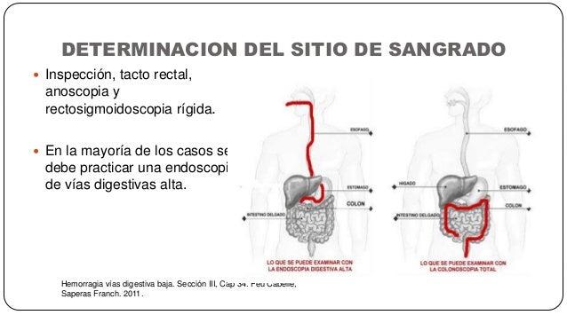DETERMINACION DEL SITIO DE SANGRADO Hemorragia vías digestiva baja. Sección III, Cap 34. Feu Cabelle, Saperas Franch. 2011...