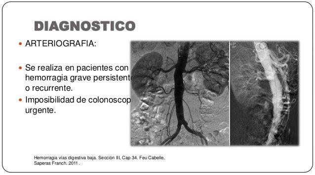 DIAGNOSTICO Hemorragia vías digestiva baja. Sección III, Cap 34. Feu Cabelle, Saperas Franch. 2011.  ARTERIOGRAFIA:  Se ...