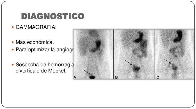 DIAGNOSTICO  GAMMAGRAFIA:  Mas económica.  Para optimizar la angiografía.  Sospecha de hemorragia por divertículo de M...