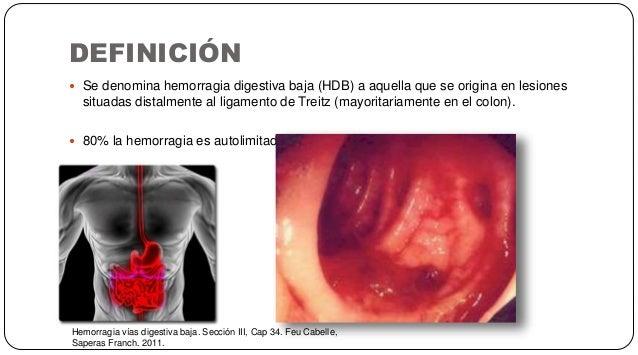 DEFINICIÓN Hemorragia vías digestiva baja. Sección III, Cap 34. Feu Cabelle, Saperas Franch. 2011.  Se denomina hemorragi...