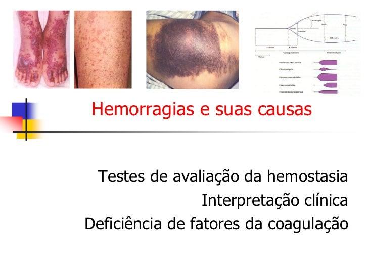 Hemorragias e suas causas Testes de avaliação da hemostasia                 Interpretação clínicaDeficiência de fatores da...