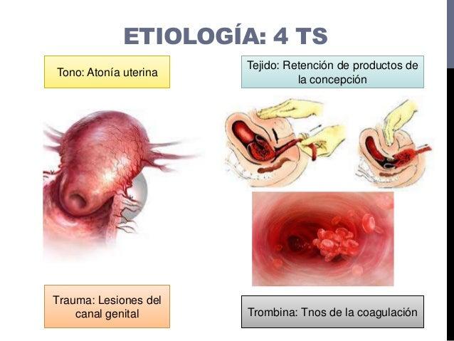ETIOLOGÍA: 4 TS Tono: Atonía uterina Tejido: Retención de productos de la concepción Trauma: Lesiones del canal genital Tr...