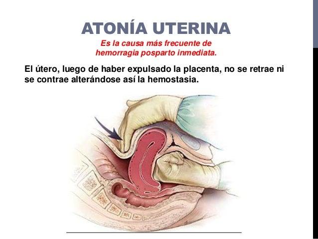 ATONÍA UTERINA Sobredistención uterina Fatiga del musculo uterino Trabajo de parto prolongado o precipitado Medicamentos u...