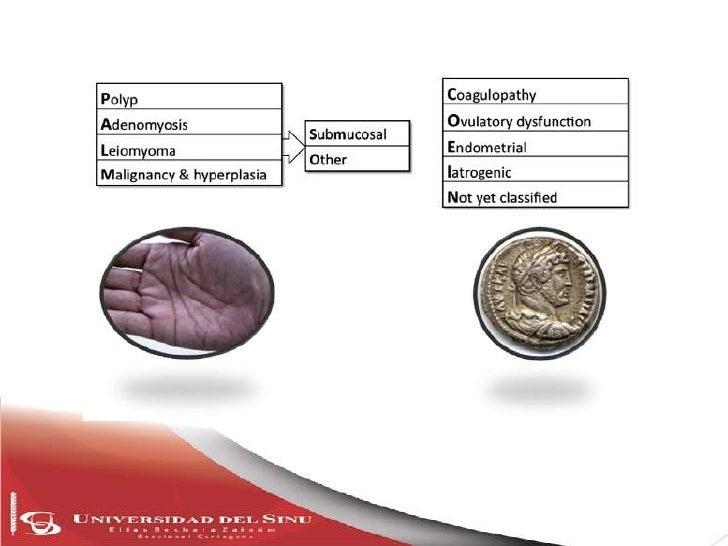 Sangrado uterino anormal agudo,       crónico e intermenstrualSangrado del cuerpo uterino que es anormal en  volumen, regu...