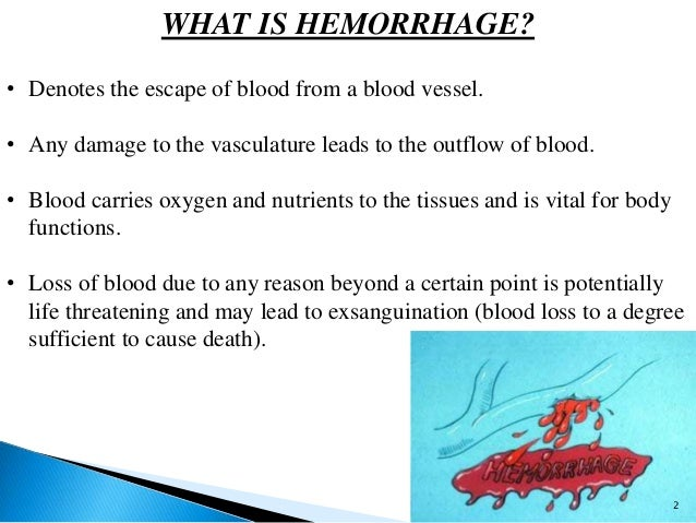 hemorrhage and its management