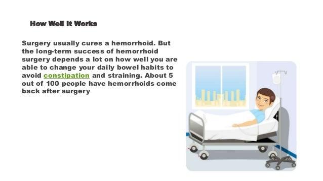 Hemorrhoidectomy for hemorrhoids