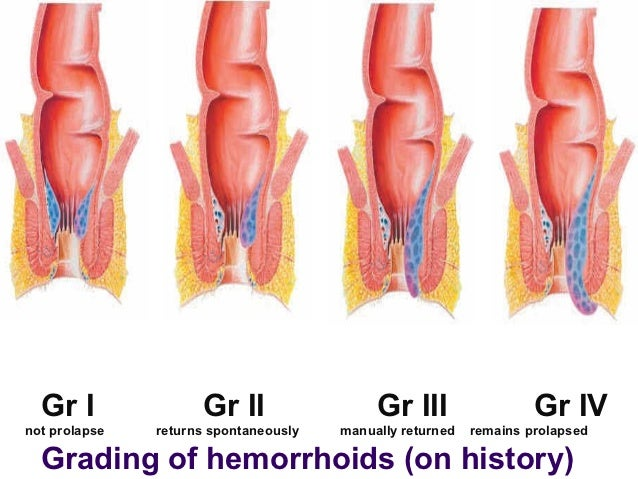 Hemorrhoids- Thrombosed Hemorrhoids