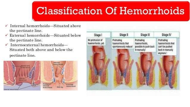 hemorrhoids - lower gi hemorrhage, Skeleton