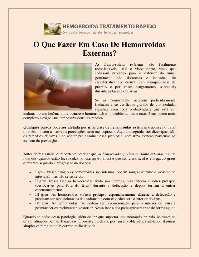 O Que Fazer Em Caso De Hemorroidas Externas? As hemorroidas externas são facilmente reconhecíveis, tátil e visivelmente, v...