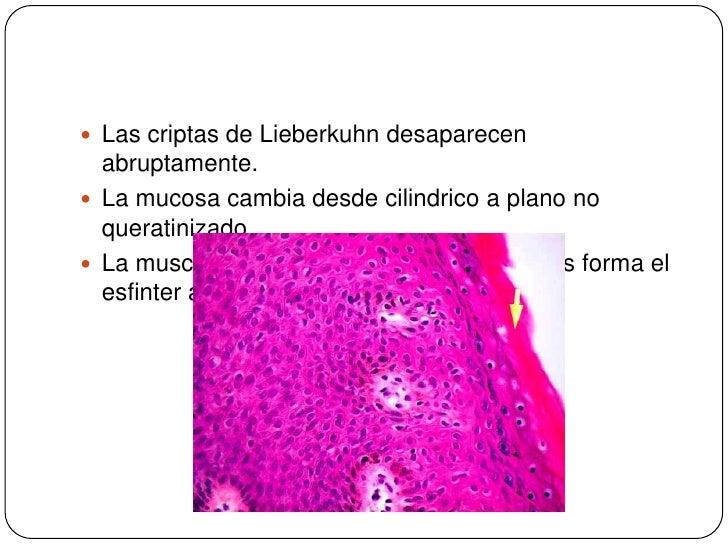 Las criptas de Lieberkuhn desaparecen abruptamente.<br />La mucosa cambia desde cilindrico a plano no queratinizado.<br />...