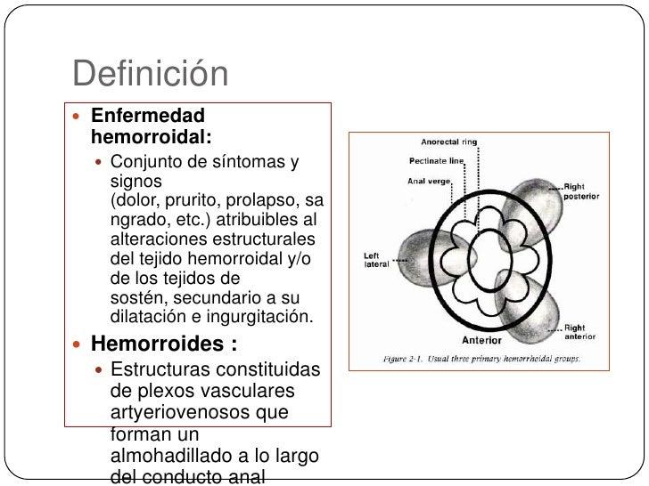 Definición<br />Enfermedad hemorroidal: <br />Conjunto de síntomas y signos (dolor, prurito, prolapso, sangrado, etc.) atr...