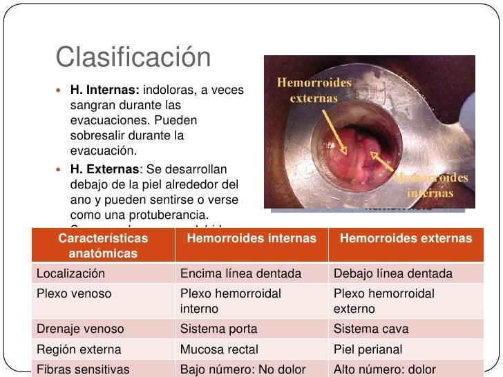 Clasificación<br />H. Internas: indoloras, a veces sangran durante las evacuaciones. Pueden sobresalir durante la evacuaci...