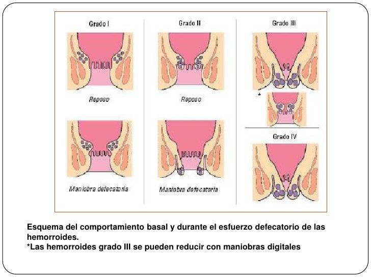 Esquema del comportamiento basal y durante el esfuerzo defecatorio de las hemorroides. <br />*Las hemorroides grado III se...