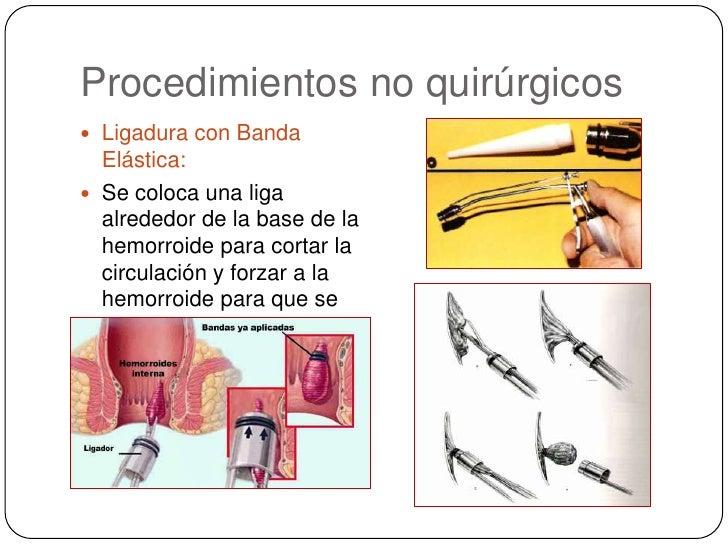 Procedimientos no quirúrgicos<br />Ligadura con Banda Elástica: <br />Se coloca una liga alrededor de la base de la hemorr...