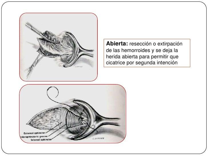 Abierta: resección o extirpación de las hemorroides y se deja la herida abierta para permitir que cicatrice por segunda in...