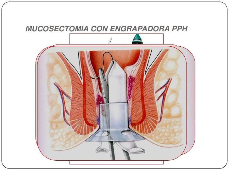 MUCOSECTOMIA CON ENGRAPADORA PPH<br />