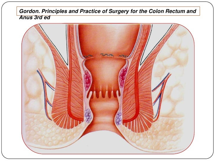 Gordon. Principles and Practice of Surgery for the Colon Rectum and Anus 3rd ed<br />