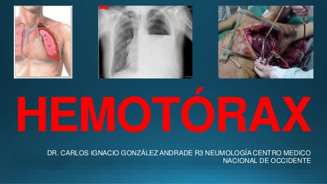 HEMOTÓRAX DR. CARLOS IGNACIO GONZÁLEZ ANDRADE R3 NEUMOLOGÍA CENTRO MEDICO NACIONAL DE OCCIDENTE