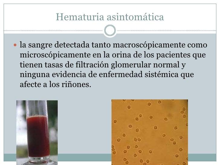Hematuria asintomática la sangre detectada tanto macroscópicamente como microscópicamente en la orina de los pacientes qu...