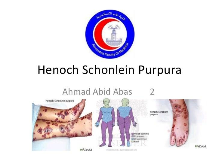 Henoch Schonlein Purpura Ahmad Abid Abas 2