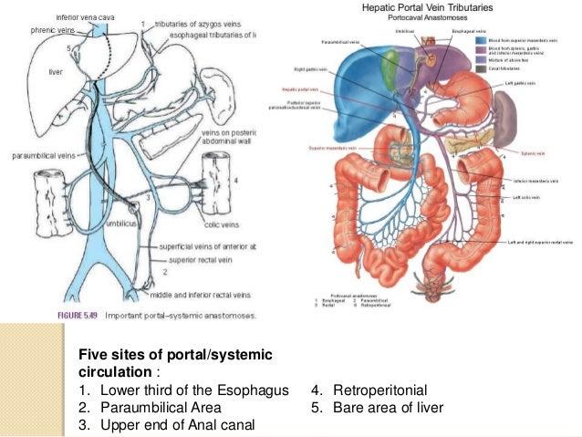 Portacaval Anastomosis