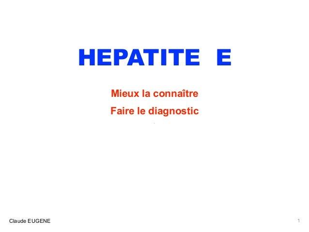HEPATITE E Mieux la connaître Faire le diagnostic . Claude EUGENE 1
