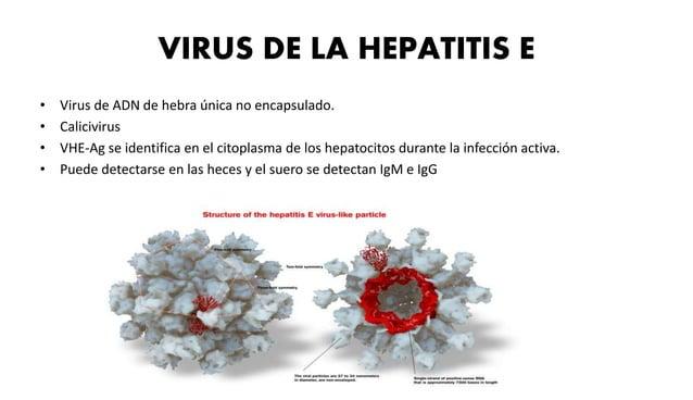 • La lesión característica de  la hepatitis crónica es la  presencia de densos  infiltrados mononucleares  portales de int...